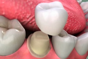 tooth preparation for a dental crown