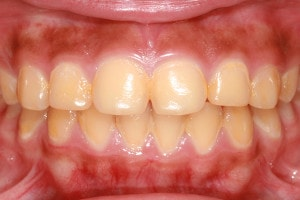 yellow discolored teeth