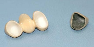 Are zirconia crowns the right choice?