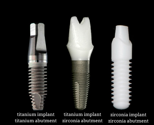 zirconia for dental implants