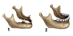 aditie de os pentru implanturi dentare la mandibula
