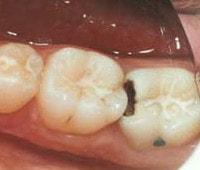caria dentara interproximala
