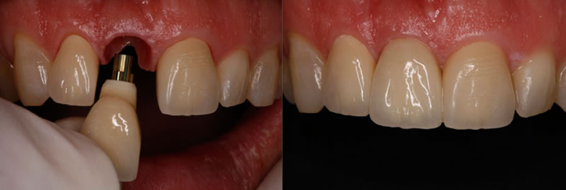 coroana pe implant dentar