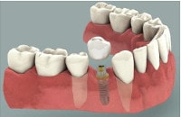 implant dentar pret : coroana pe implant
