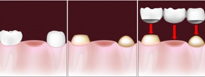 implant dentar comparat cu punte dentara