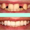 implant dentar imediat