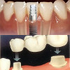 implant dentar vs punte