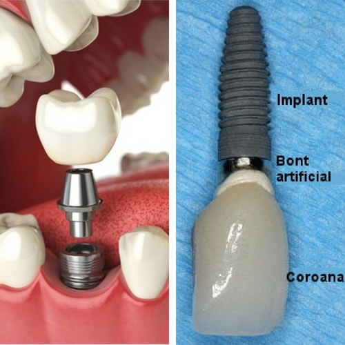 implant unidentar structura generala