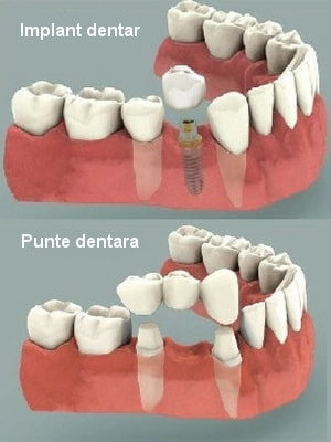 implant vs punte dentara