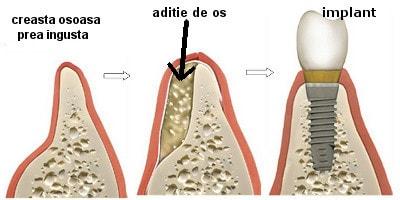 operatia de aditie de os pentru implanturi dentare
