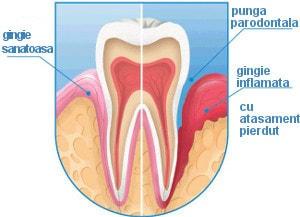 punga parodontala