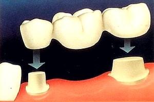 punte dentara schematic