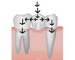 punte dentara : transmiterea fortelor masticatorii