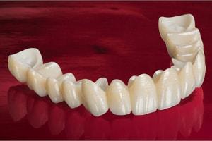 punte dentara cu schelet de zirconiu