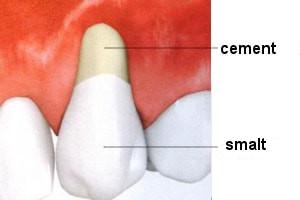 retractie gingivala