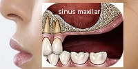 implant dentar, contraindicatii locale : sinus maxilar coborat