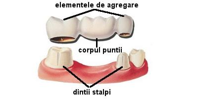 structura punte dentara